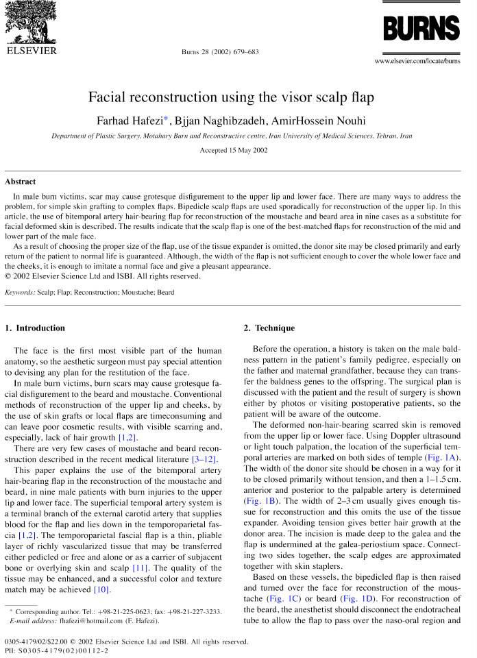 Facial reconstruction using the visor scalp flap